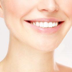 روشهای معجزه آسا و خانگی برای سفید کردن دندانها
