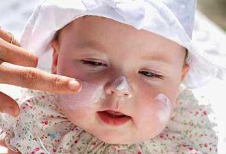 ba1435 مراقبت از پوست كودك در فصل سرما
