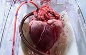 قلب انسان این طور میزند/ تصویر متحرک