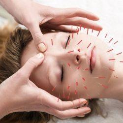 طب سوزنی Acupuncture