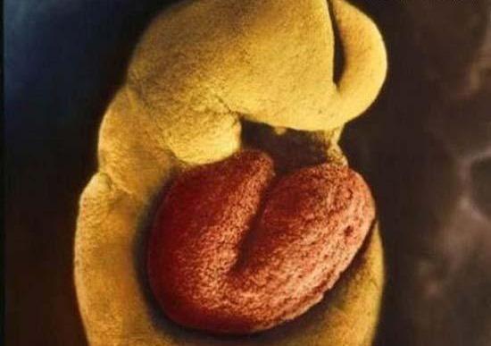 1 8 نحوه شکل گیری نوزاد از ابتدای لقاح تا تولد / تصاویر