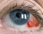 311217987451521021557669311142512815628 لکه خونی در چشم