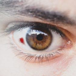 لکه خونی در چشم (علت و درمان)