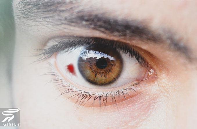 لکه خونی در چشم (علت و درمان), جدید 1400 -گهر
