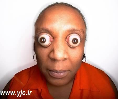 1012308 310 عجیبترین چشم های دنیا/عکس