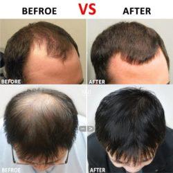 نازک شدن مو