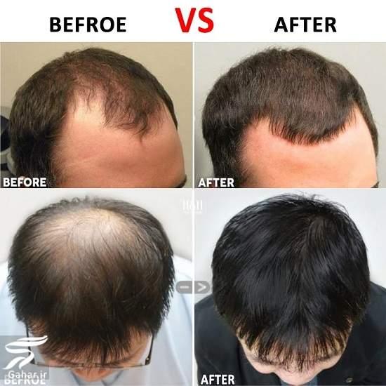 Hair thinning علل و درمان موهای نازک و شکننده چیست؟ [راهکارهای مهم]