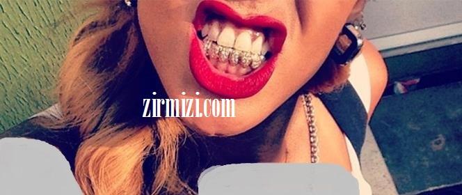 ریحانا مد شدن دندانهای طلا بین بازیگران هالیوودی
