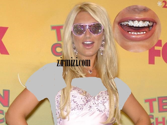 Linda Hogans مد شدن دندانهای طلا بین بازیگران هالیوودی