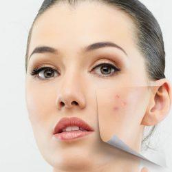 نقش ضد آفتاب در آهسته شدن پیری پوست
