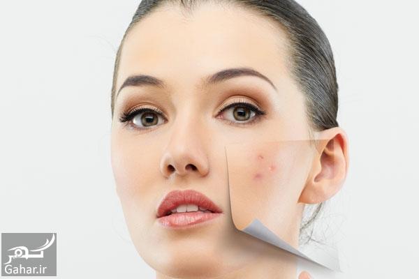 نقش ضد آفتاب در آهسته شدن پیری پوست, جدید 1400 -گهر