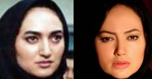 1 141 قبل و بعد عمل زیبایی بازیگران ایرانی
