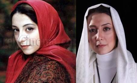 rtyy قبل و بعد عمل زیبایی بازیگران ایرانی