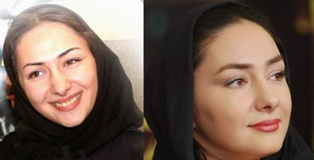 utut قبل و بعد عمل زیبایی بازیگران ایرانی