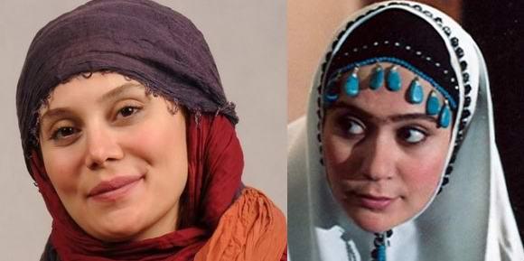 yuur6 قبل و بعد عمل زیبایی بازیگران ایرانی