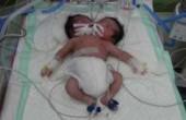 نوزاد دو سر درگذشت +عکس