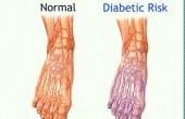 نوروپاتی دیابتی چگونه تشخیص داده می شود؟