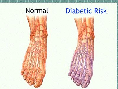 vd1  نوروپاتی دیابتی چگونه تشخیص داده می شود؟
