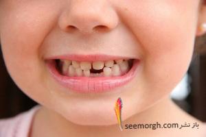 185671 دندان های شیری را جدی بگیرید