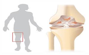 hhs1269 درمان آرتروز زانو با ورزش / عکس