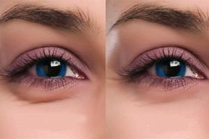 راه های درمان چشم های پف کرده, جدید 1400 -گهر