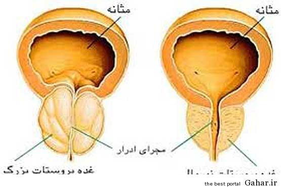 1 635244569647065853 درمان پروستات با طب گیاهی