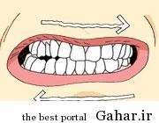 1 d gh2 دندان قروچه و عوارض آن