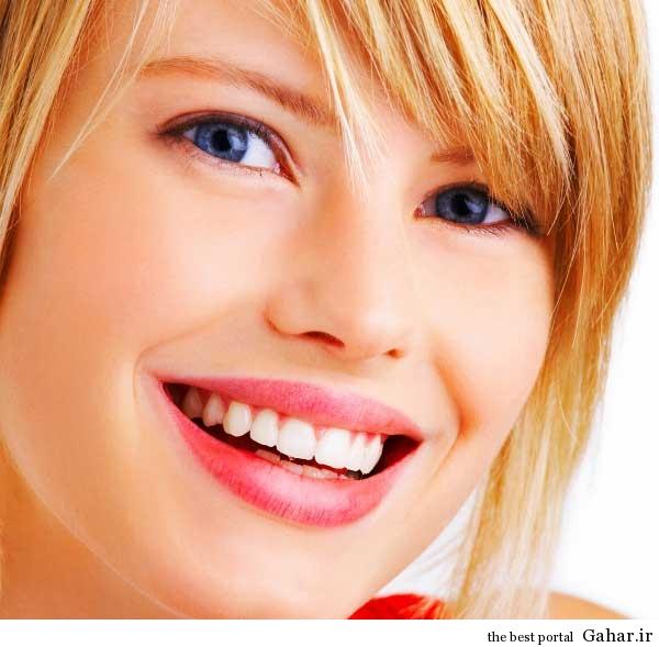 آرایشی که باعث زیباتر نشان دادن دندان ها می شود, جدید 1400 -گهر