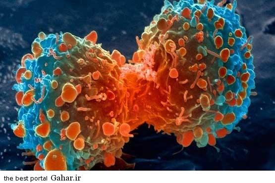 635401562114086628 نانو حسگرهایی برای تشخیص سرطان