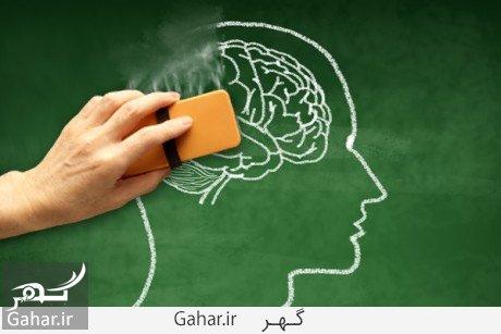 alzheimer brain استرس و اضطراب عامل بروز افسردگی پیشرفته و آلزایمر
