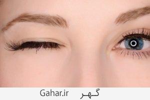 eyelidTwitching اسپاسم چشم یا پریدن پلک نشانه چیست؟
