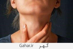 throat cancer 1 سرطان گلو علل و علائم و راه های پیشگیری و درمان