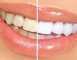 ترکیبی جادویی برای جرم گیری و سفید شدن دندان ها