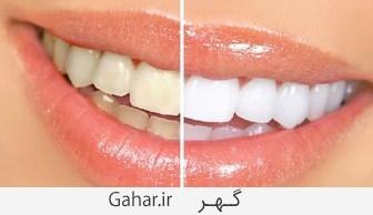 دندان ترکیبی جادویی برای جرم گیری و سفید شدن دندان ها