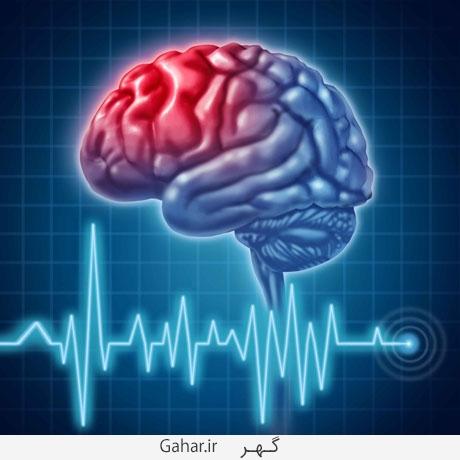 820589 621 آیا می دانید نشانه های سکته مغزی چیست؟