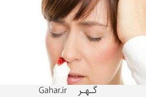 Nosebleed علل خون دماغ شدن و خونریزی لثه هنگام مسواک زدن