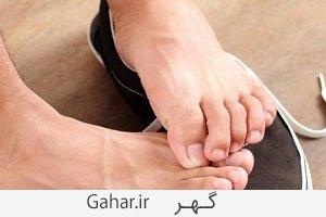 feet shoes علل و پیشگیری و درمان کرختی انگشتان