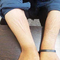 مصاحبه دردناک با دختر ایرانی که پدرش به او تجاوز کرد
