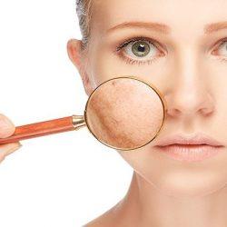 راههای طبیعی مراقبت از پوست