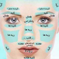 تشخیص بیماری ها فقط از روی صورت