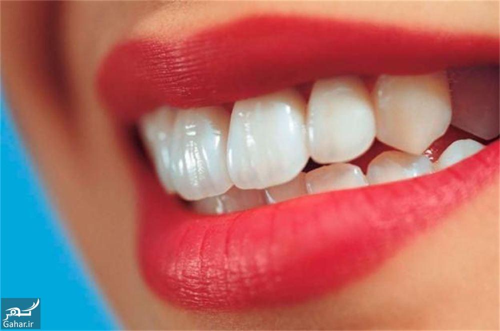 2 1 شخصیت شناسی براساس شکل دندان ها