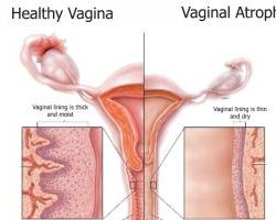 vaginal-atrophy