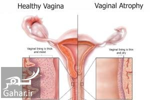 Vaginal atrophy همه آنچه که باید در مورد آتروفی واژن باید بدانید