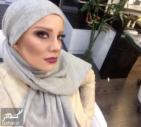 sharareh عکس جدید شراره رخام بعد از تخلیه پروتز لب