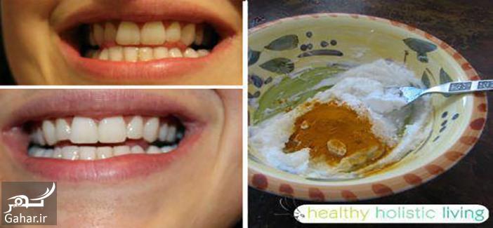 2 4 طرز تهیه معجونی جادویی برای دندان و لثه