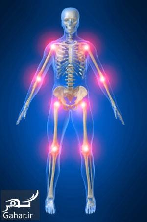 236143dc0a4d7745b5f62c93dfa2a2cc راه های درمان آرتریت مفصلی کدامند؟