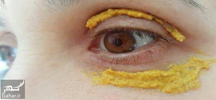 6 2 خواص ماسک زردچوبه برای رفع سیاهی دور چشم + طرز تهیه