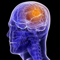 همه چیز در مورد تومور مغزی + روش های درمان