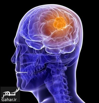 60045 همه چیز در مورد تومور مغزی + روش های درمان