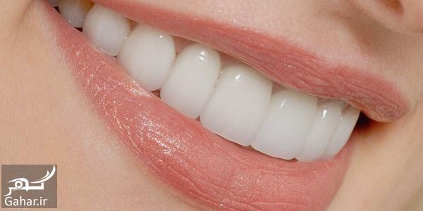 632908751 talab ir معرفی بهترین و موثرترین مسکن ها برای درد دندان